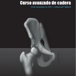 CURSO AVANZADO DE CADERA